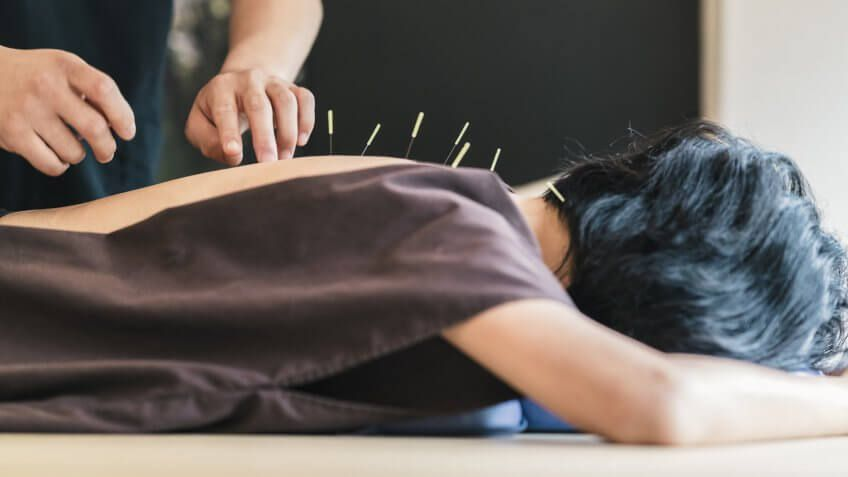 person getting acupuncture