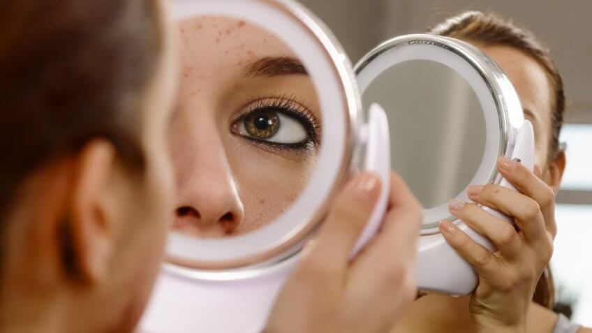 teenager with problematic skin looking in the mirror.