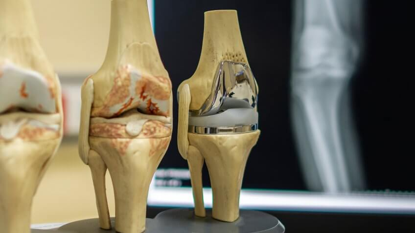knee replacement technology