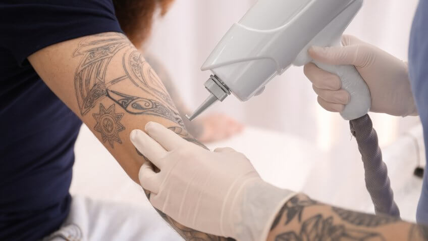 man getting tattoo removed