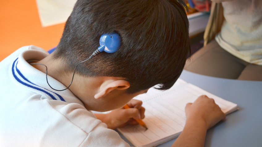 kid with cochlear implant